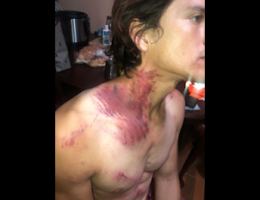 Tijuana Man Denounces 2 Cops and Shows Off his Torture Wounds