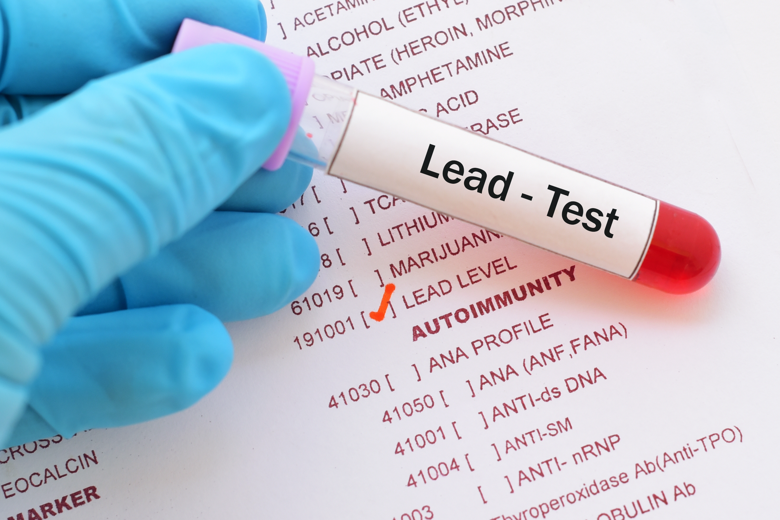A test tube with a lead test