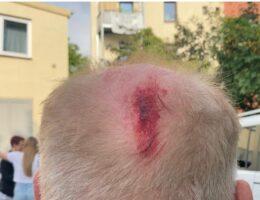 Merkel's Goon Squad: Antifa Attacks AfD rally in Hamburg, One Hospitalized