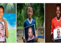 Feel-Good Friday: Celebrate World Smile Day and Help Restore Cleft Palates